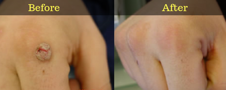 Wartrol Before and After Picture