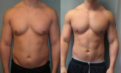 gynectrol gynecomastia before and after results